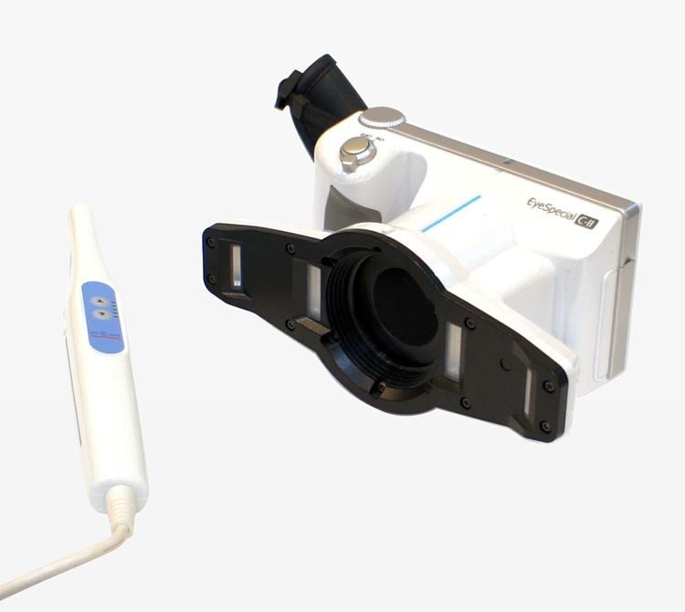 歯科専用カメラ・口腔内専用カメラ